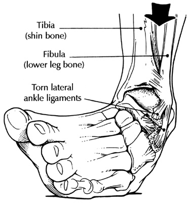 Anatomy Sports Medicine Ankle Sprain