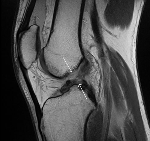 Returning to Sport after ACL Injuries « Dr. Samuel D ...